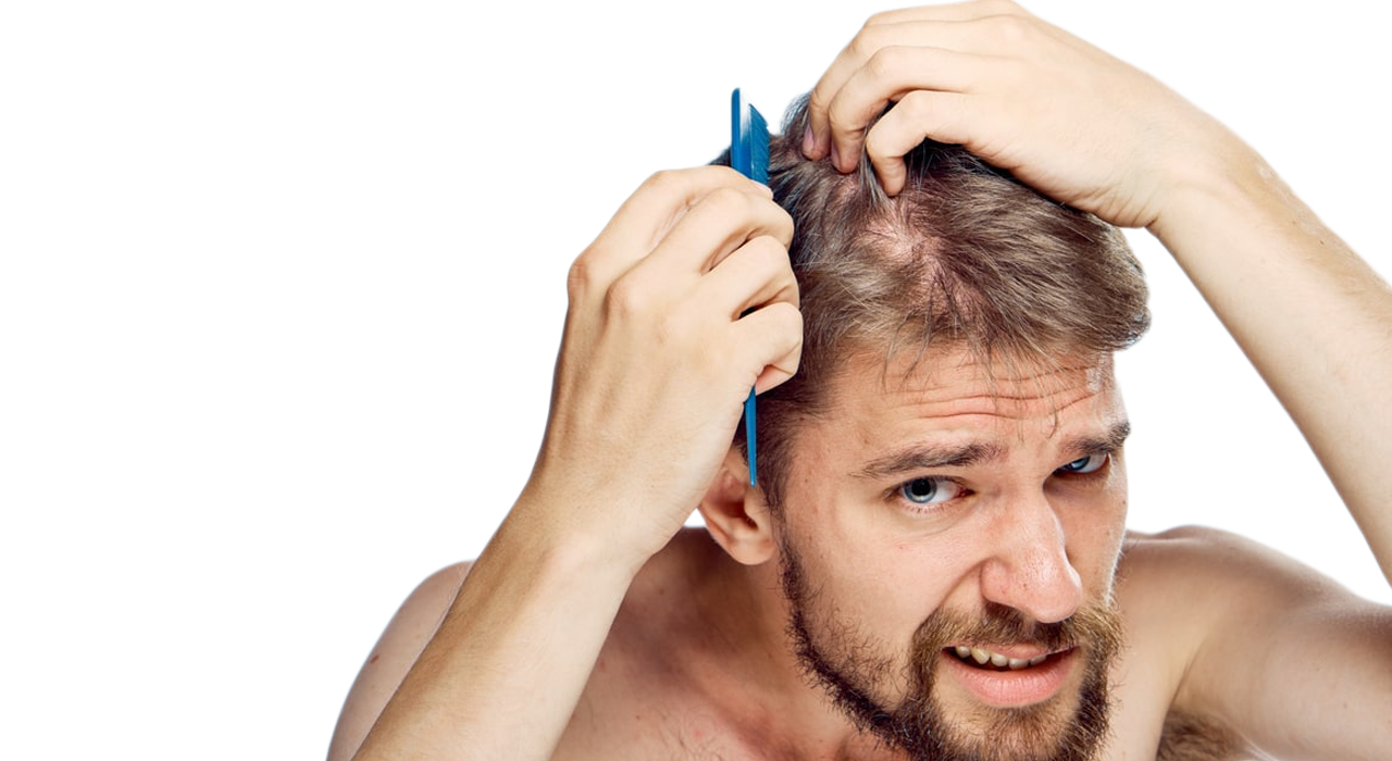 Why Procerin Works Stop Hair Loss with Procerin Discount 2020 1