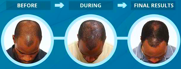 Why Procerin Works Stop Hair Loss with Procerin Discount 2020 2