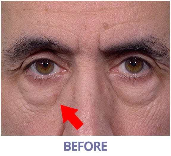 ritchie g flatten his eyebags within 10 minutes 1