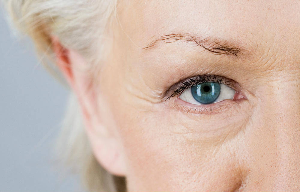 wrinkles be gone reclaim your youth with plexaderm